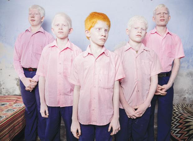Gente. Crianças albinas na Índia. Um grupo de garotos albinos cegos é fotografado na escola missionária para cegos Vivekananda, na Bengala Ocidental. A imagem de Brent Stirton para a Getty Images ficou em 1º lugar na categoria Retratos Posados | Brent Stirton/Getty Images
