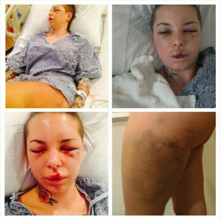 Christy Mack está bastante machucada após apanhar de lutador   Reprodução/Twitter