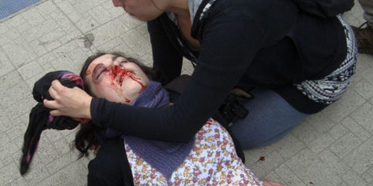 Universitaria con serio daño en un ojo por bomba lacrimógena de Carabineros