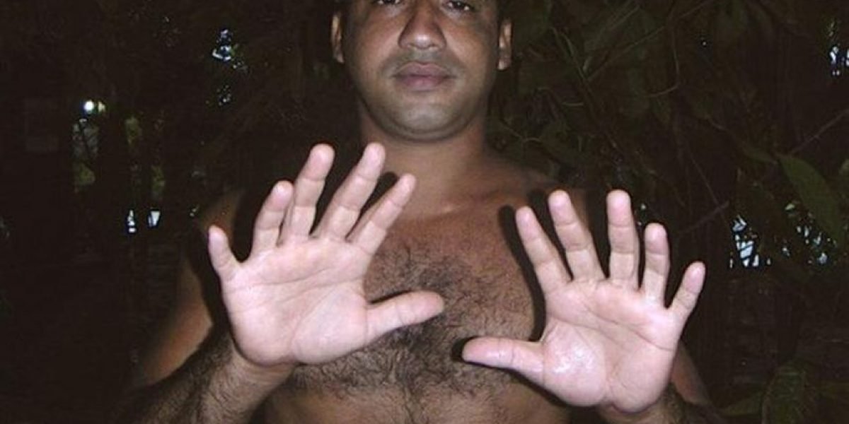 Un joven cubano con 24 dedos asegura que lleva una vida normal