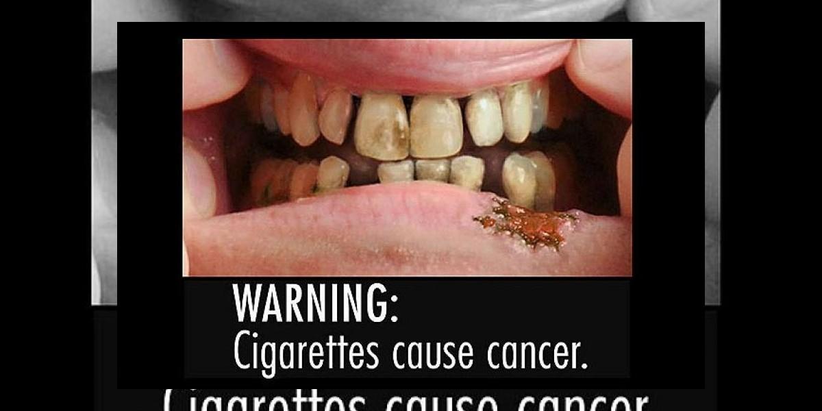 [FOTOS] Cajetillas de cigarros tendrán escalofriantes imágenes en EE.UU.