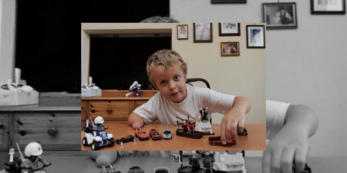 [FOTO] A este niño le robaron el brazo