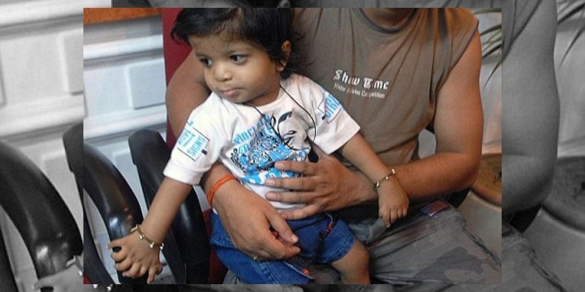 Niño en India nace con 34 dedos y obtiene récord Guiness