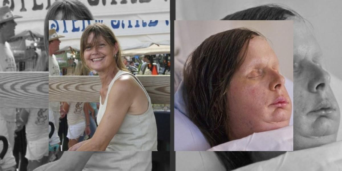 Nuevas imágenes muestran notable avance en mujer trasplantada de rostro