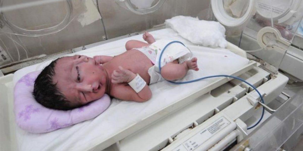 Extraño caso en Pakistán: Niño nace con dos caras