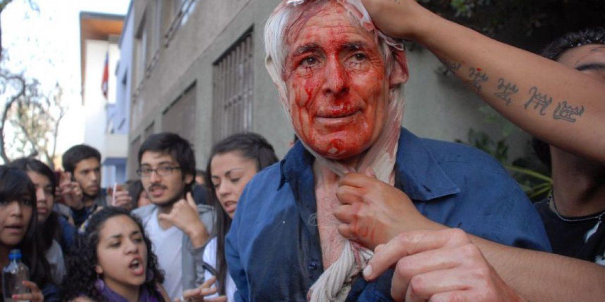 [FOTOS] Marcha: Hombre queda herido por plato lanzado desde edificio