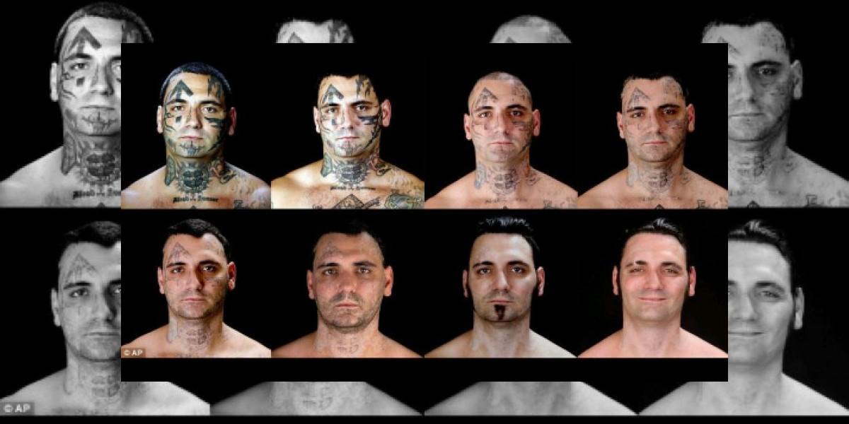Neonazi arrepentido obtiene grandes resultados al borrarse tatuajes de la cara