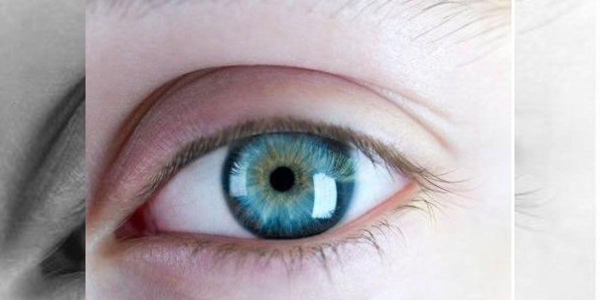 ¿Quieres ojos azules? Ahora es posible tras una corta cirugía