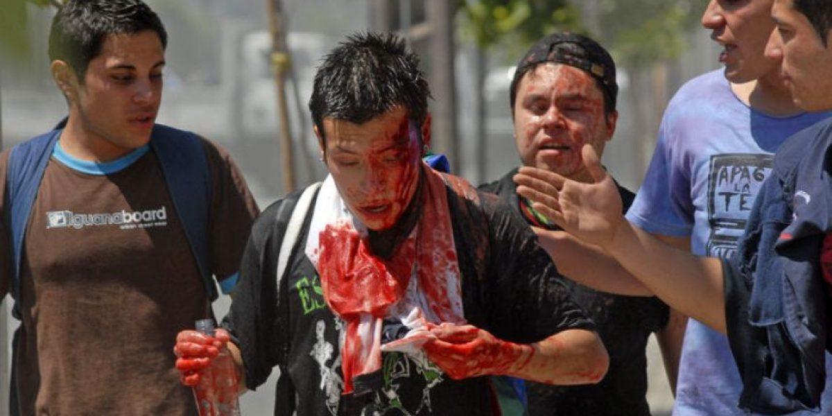 [FOTOS] Estudiante resulta con herida en la cabeza en marcha estudiantil