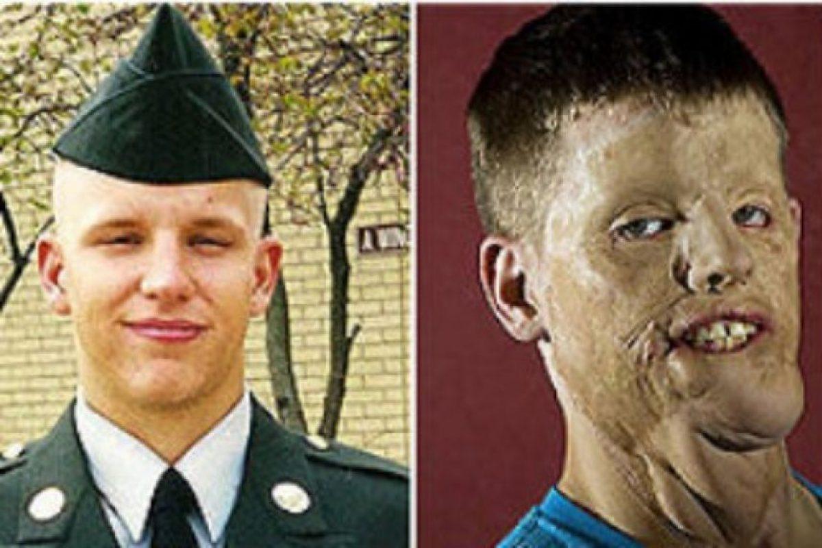 Mitch antes y después del accidente Foto:BBC Mundo. Imagen Por: