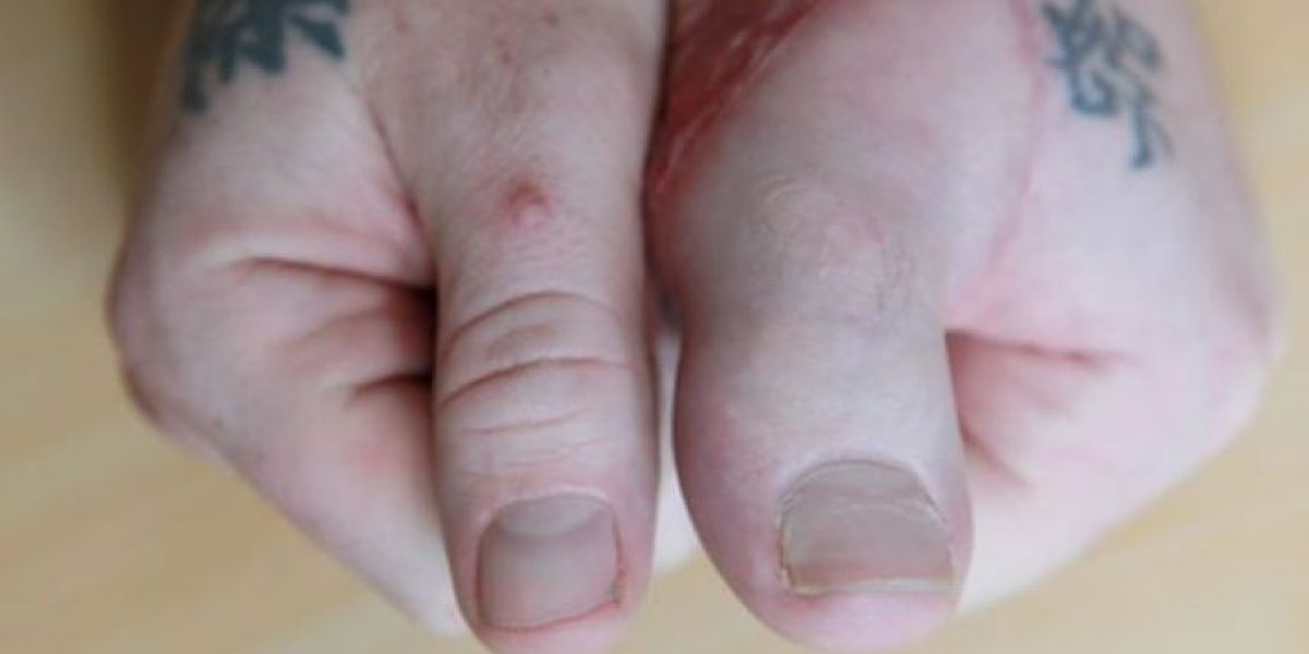 Le trasplantan un dedo del pie en la mano