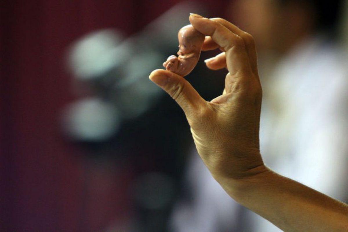 Una manifistante sostiene una reproducción de un feto, en las tribunas de la sala del Senado, donde en sesión extraordinaria, se debaten proyectos sobre aborto terapéutico. Foto:UPI/Jonathan Mancilla. Imagen Por: