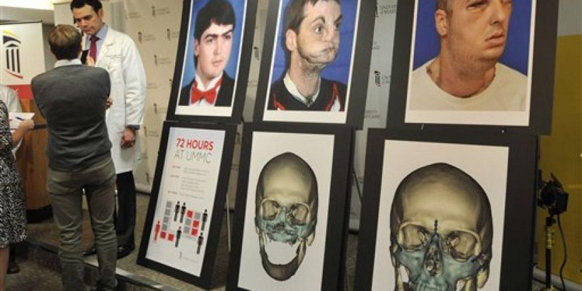[FOTOS] Cirujanos realizan el trasplante de cara