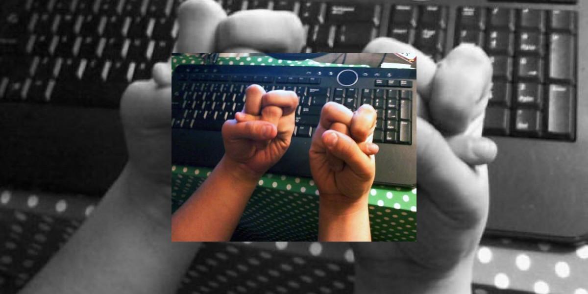No recomendaría doblar así los dedos