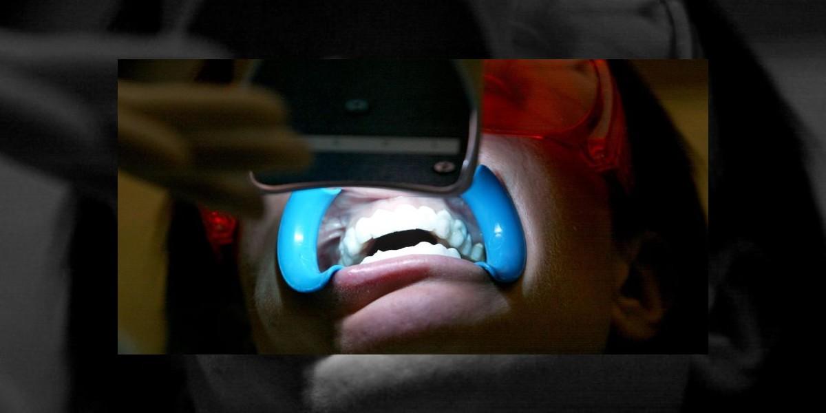 Una dentista le sacó todos los dientes a su ex novio y así lo hizo