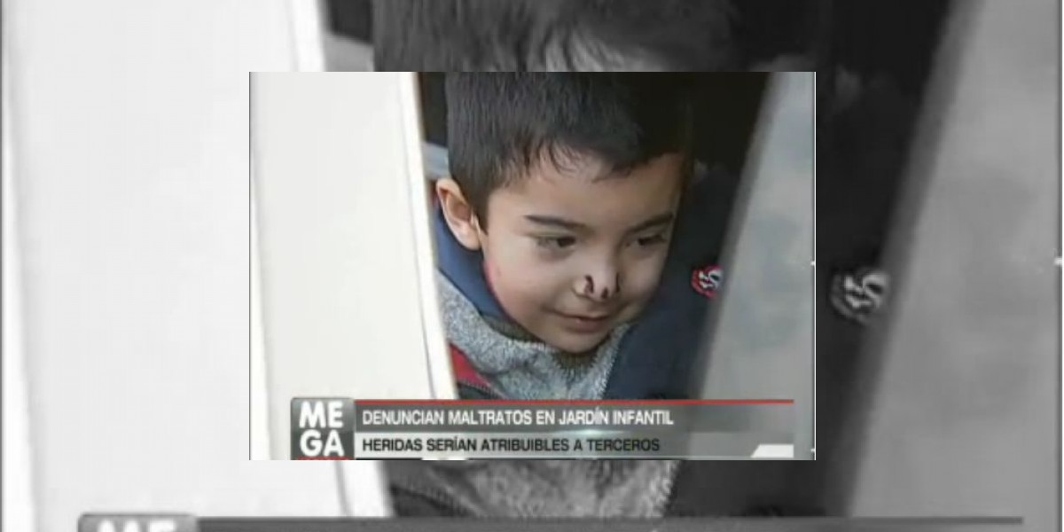 [VIDEO] Padres denuncian graves maltratos en jardín infantil
