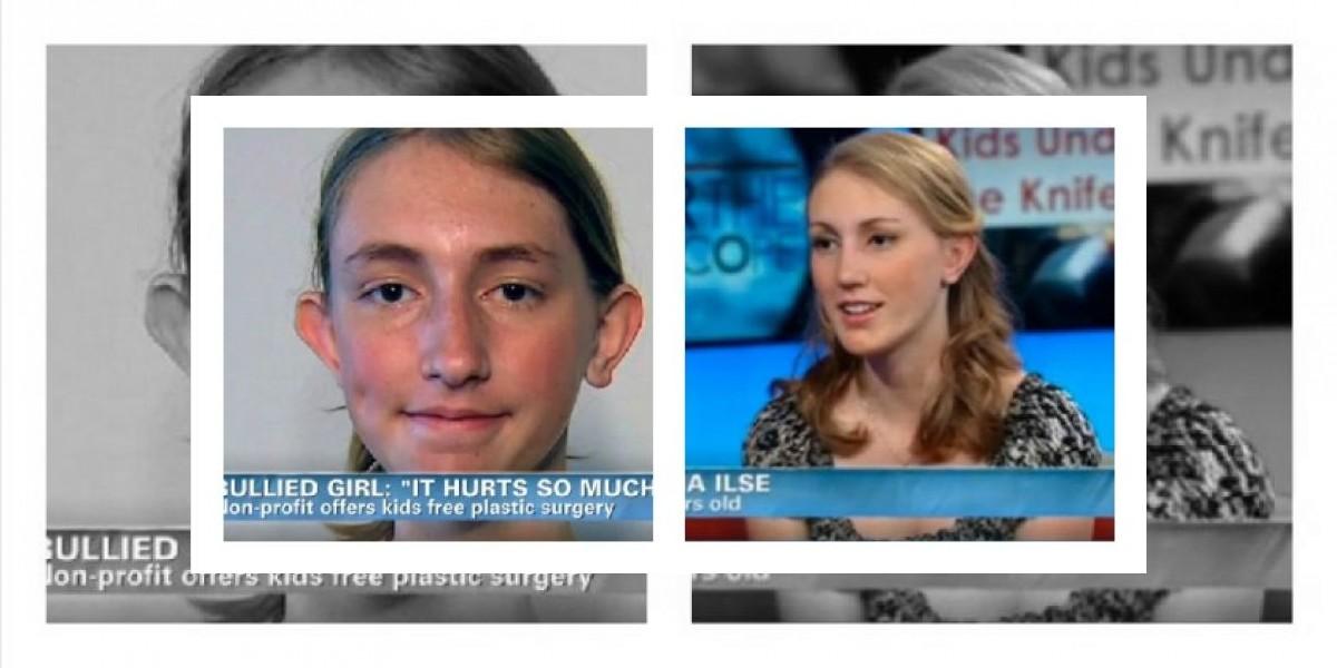 Antes y ahora: Someten a cirugía plástica a chica que sufría bullying en EE.UU.
