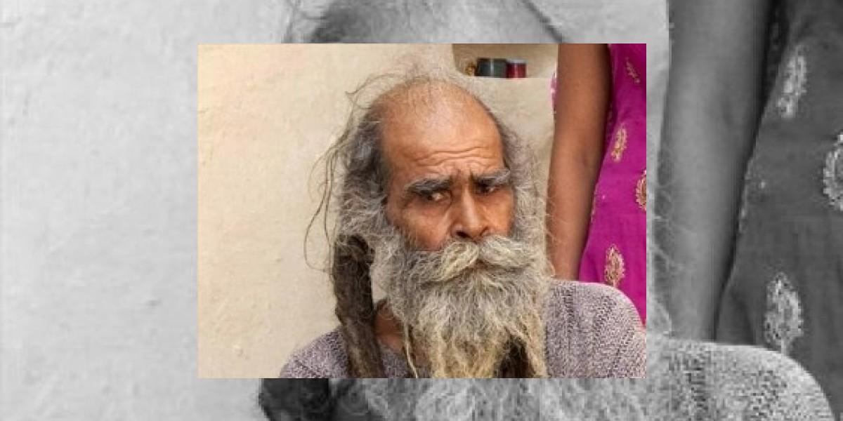 Este hombre podría ser el más sucio del mundo: No se baña hace 38 años