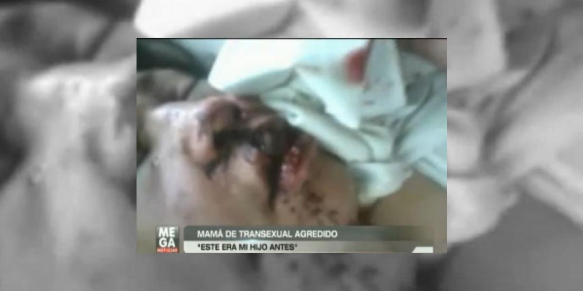 Detienen a los presuntos agresores de ataque a joven transexual en Ancud