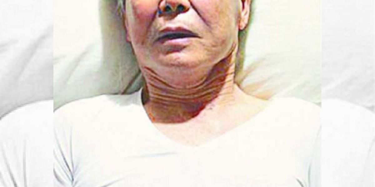 Estremecedora fotografía refleja el precario estado de salud de Fujimori