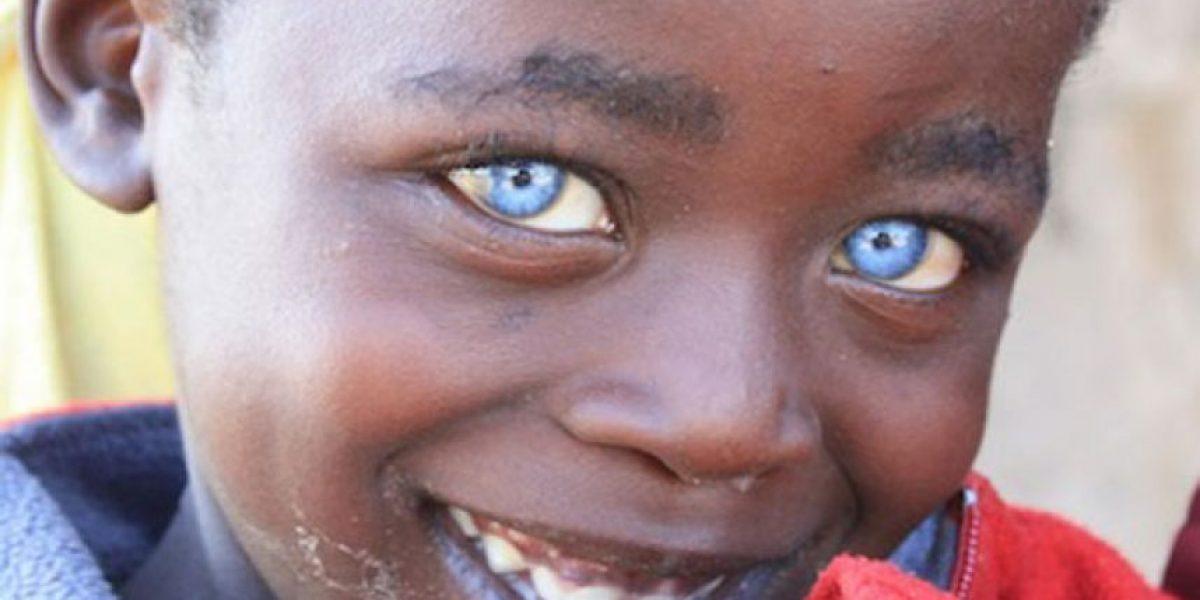 [FOTOS] El color de ojos de este niño sorprende al mundo
