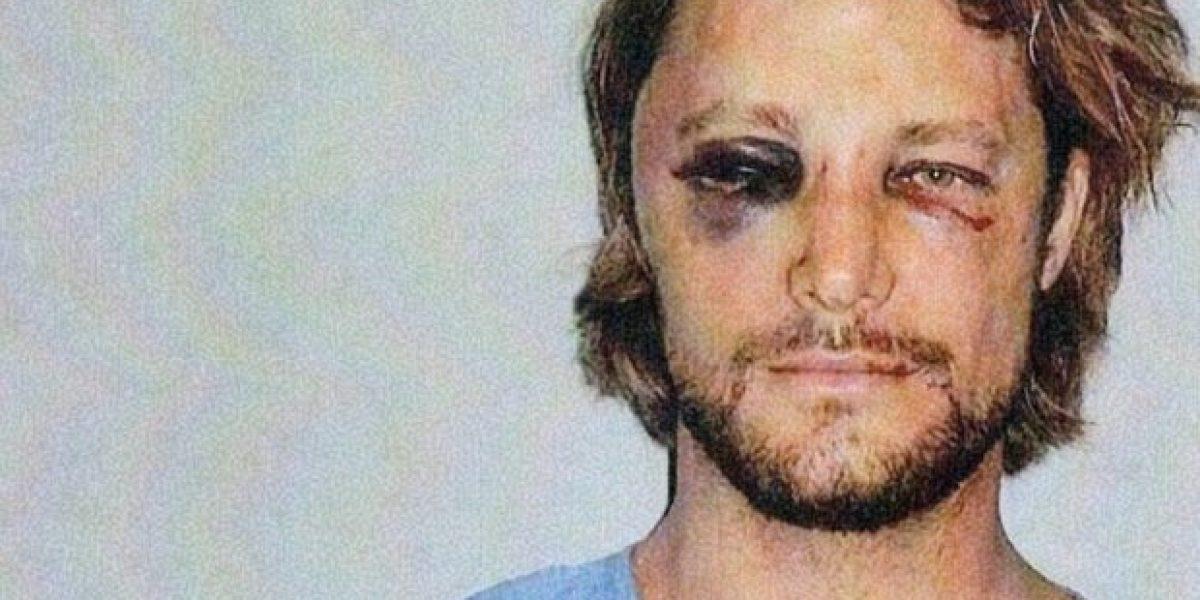 Así quedó el ex esposo de Halle Berry luego que su pareja le destrozara la cara