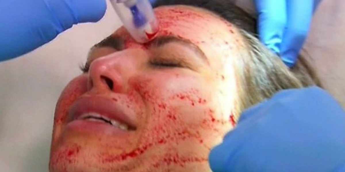 El tratamiento facial extremo de Kim Kardashian con su propia sangre