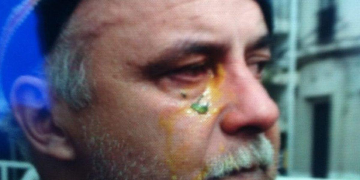 Marcha: Denuncian que Carabineros disparó balines de pintura a la cara