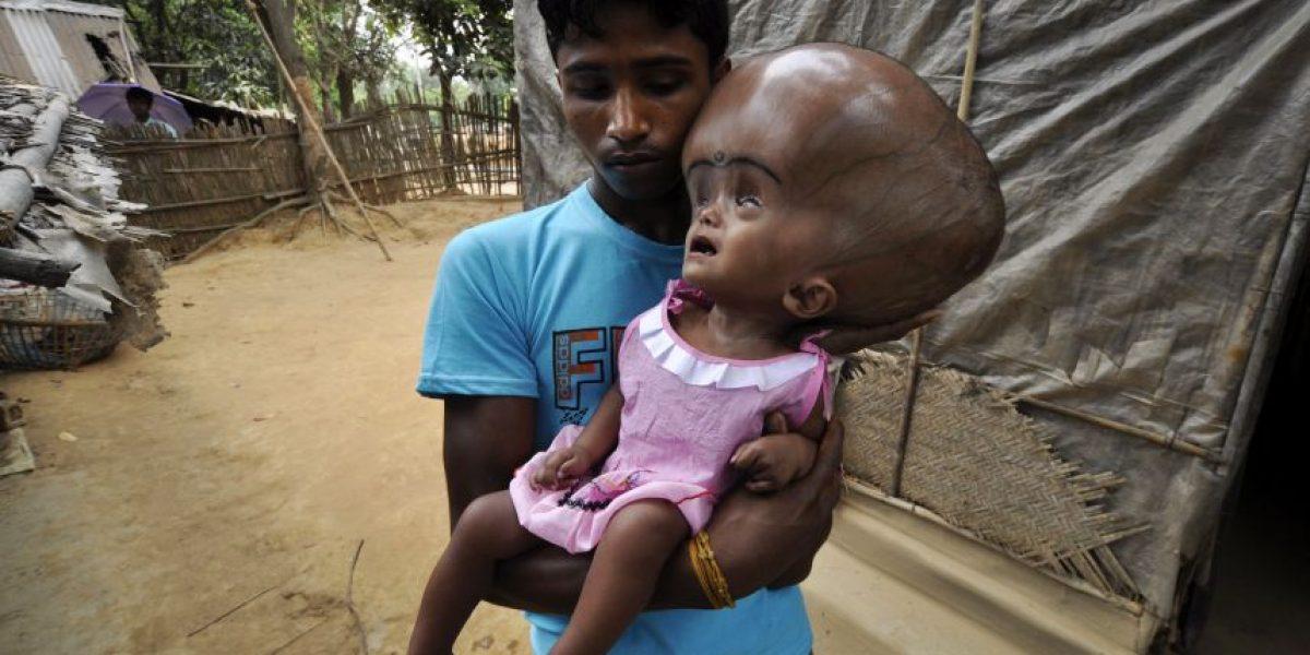 Caso de niña con cráneo hipertrofiado conmocionada al mundo