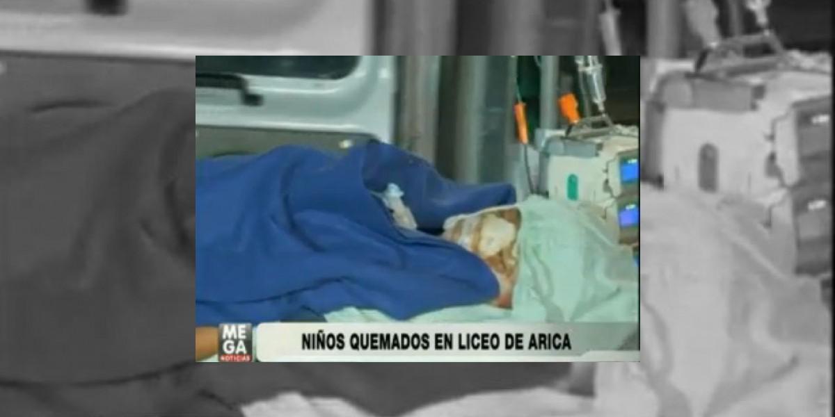 Graves continúan niños quemados con agua hirviendo en Arica
