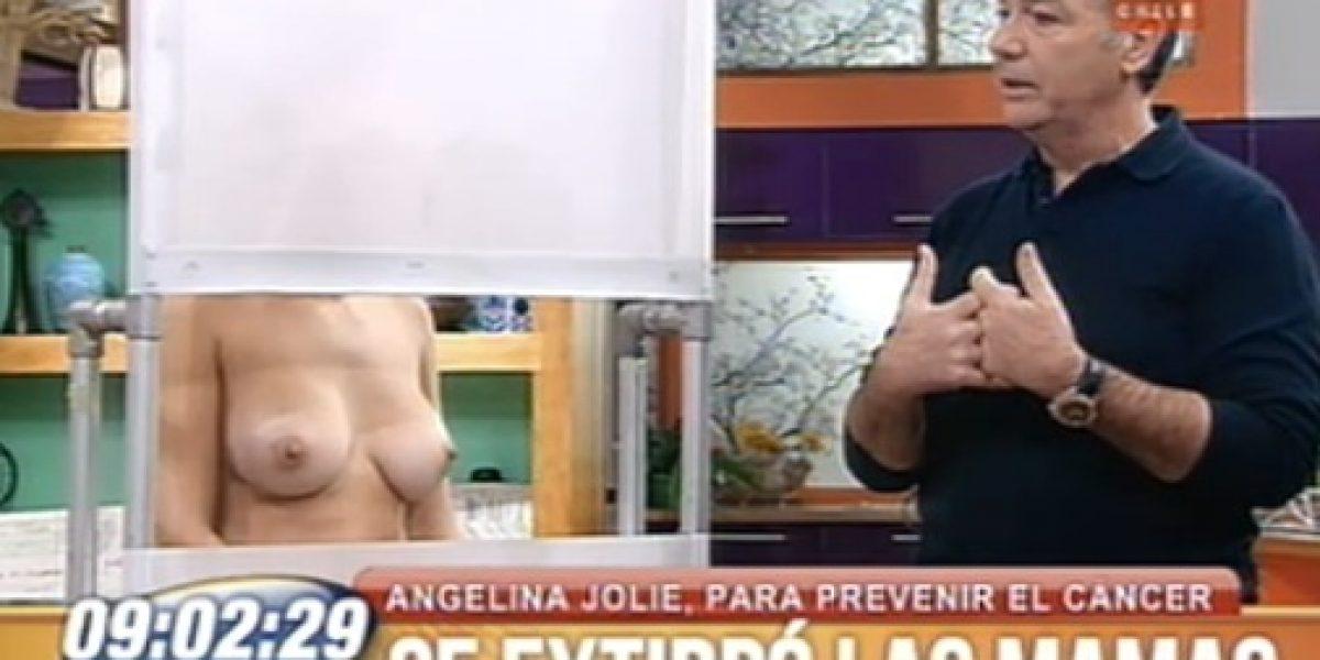 Con modelo en vivo BDAT trata tema de mastectomía de Angelina Jolie