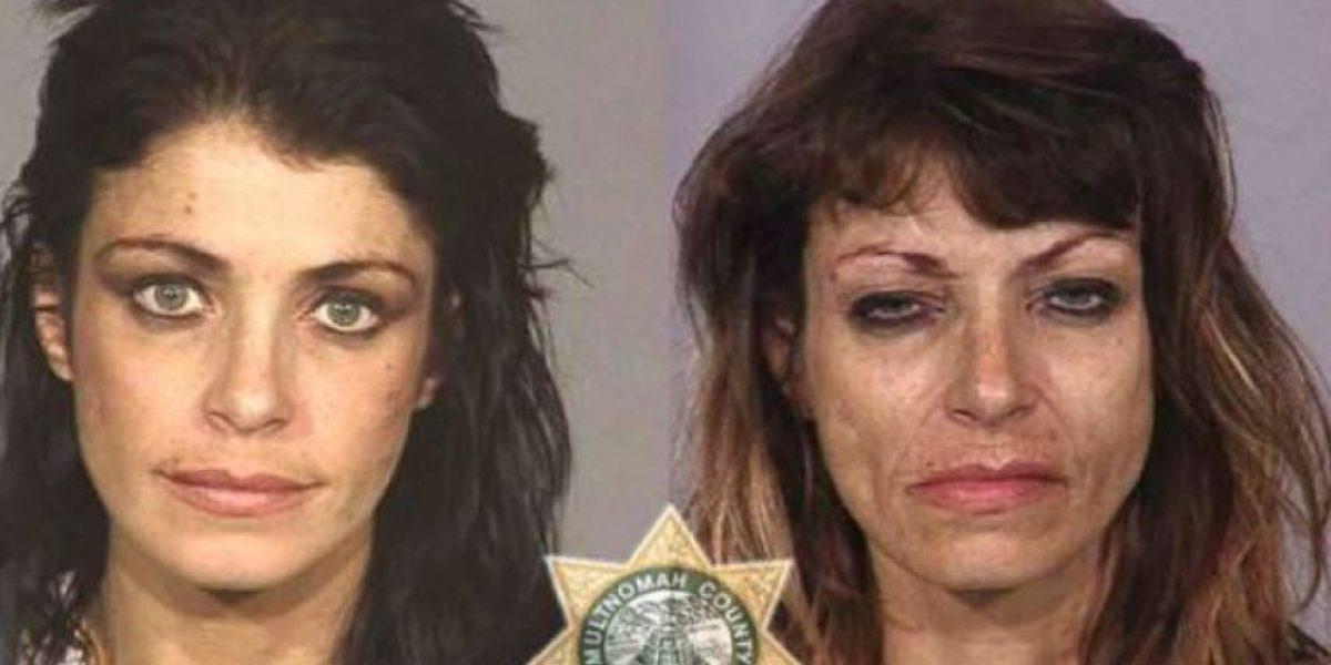 El efecto de las drogas: Impresionante antes y después