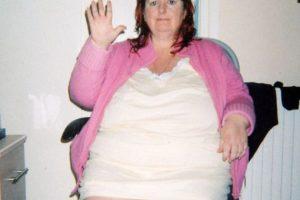 la mujer llegó a pesar 120 kilos Foto:dailymail.co.uk/. Imagen Por: