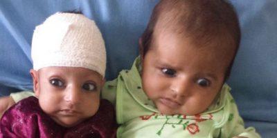 FOTOS: Médicos afganos retiran una