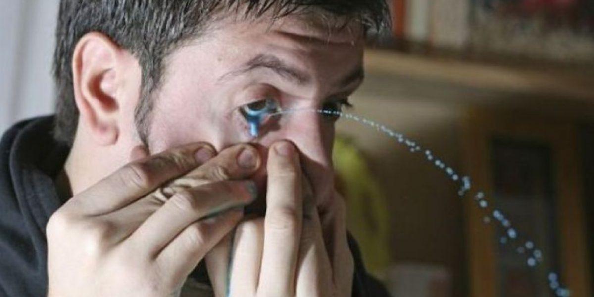 Fotos del insólito caso de hombre al que le sale pintura por los ojos