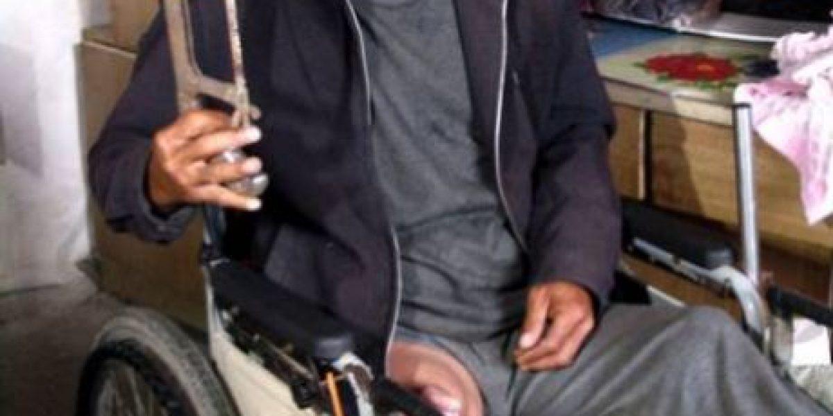 [FOTOS] Se cortó la pierna con una sierra por no tener dinero para una operación