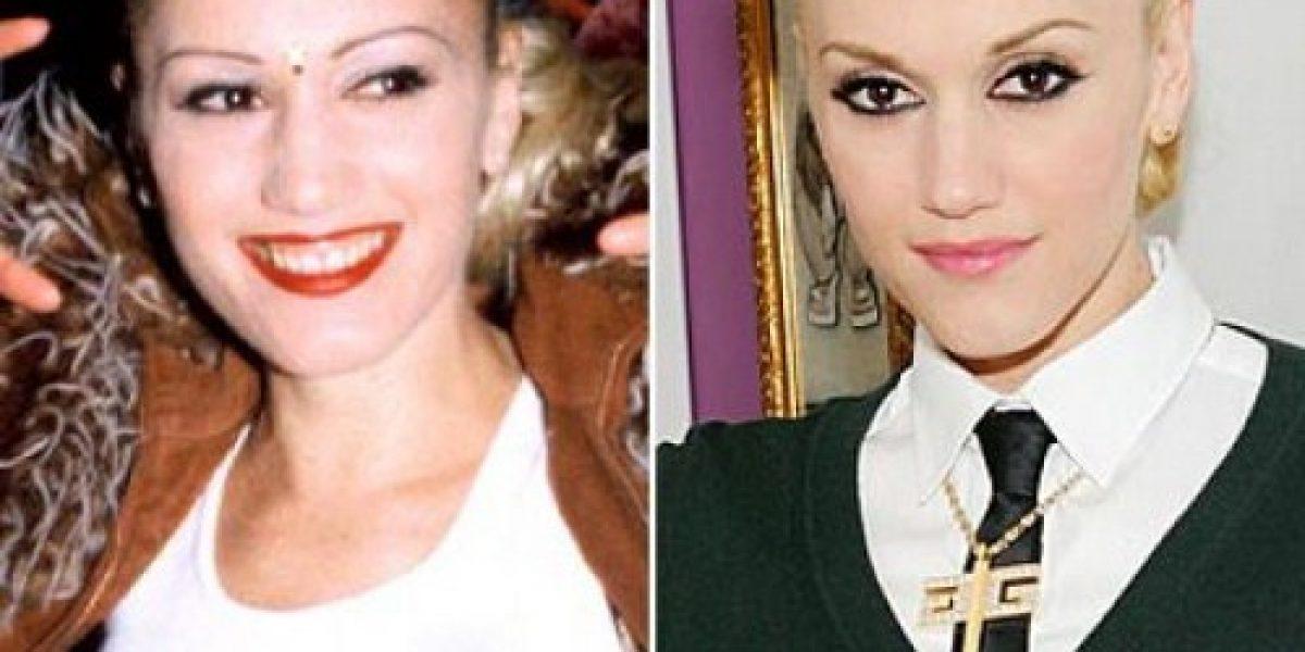 17 famosas antes y después de la cirugía plástica