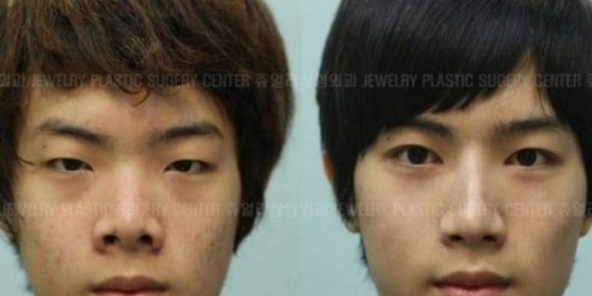 FOTOS: Coreanos antes y después de una cirugía plástica