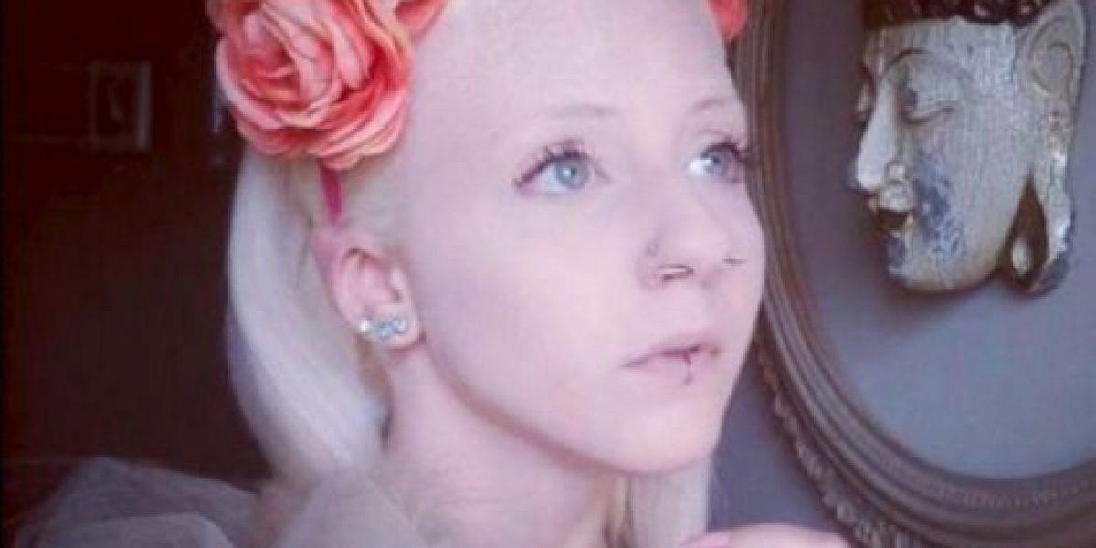 FOTOS: Joven se corta las orejas para parecer elfo de