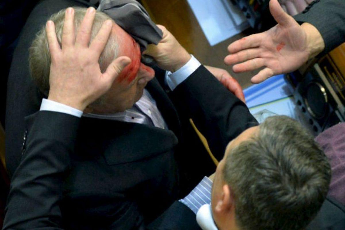 Un diputado de la mayoría pro-rusa en el parlamento de Ucrania se limpia la sangre de la frente de un compañero MP después de que fue herido en una discusión con un diputado de la oposición pro-UE. Foto:AFP. Imagen Por:
