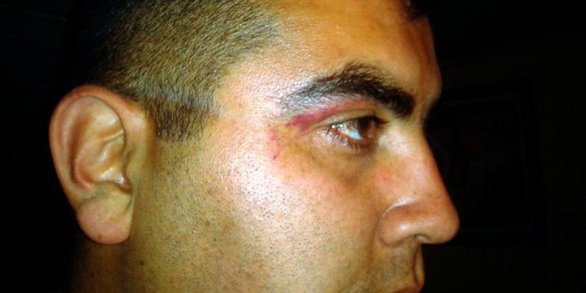 [FOTOS] Gendarme acusa a Carabineros de agresión injustificada