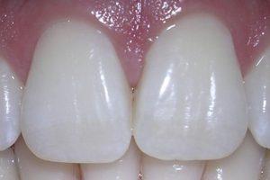 Uso de hilo dental para remover restos de comida. Foto:Wikipedia image. Imagen Por: