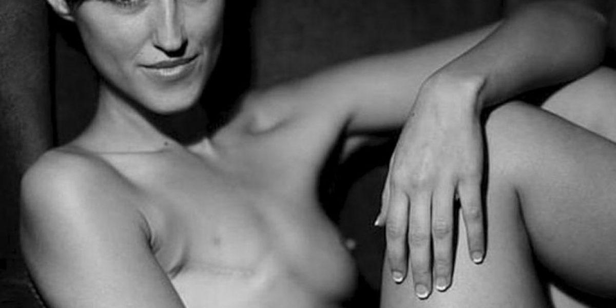 Facebook censura foto de mujer con mastectomía