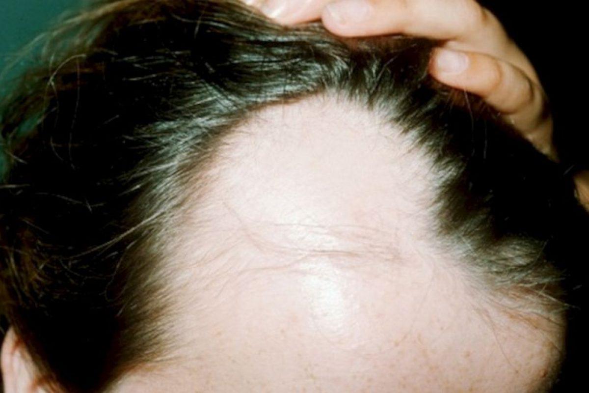 La máscara para la reconstitución de los cabello por los óleos etéricos