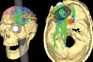 Sobrevivió con una vara incrustada entre el ojo y el cerebro. Foto:Wikipedia. Imagen Por: