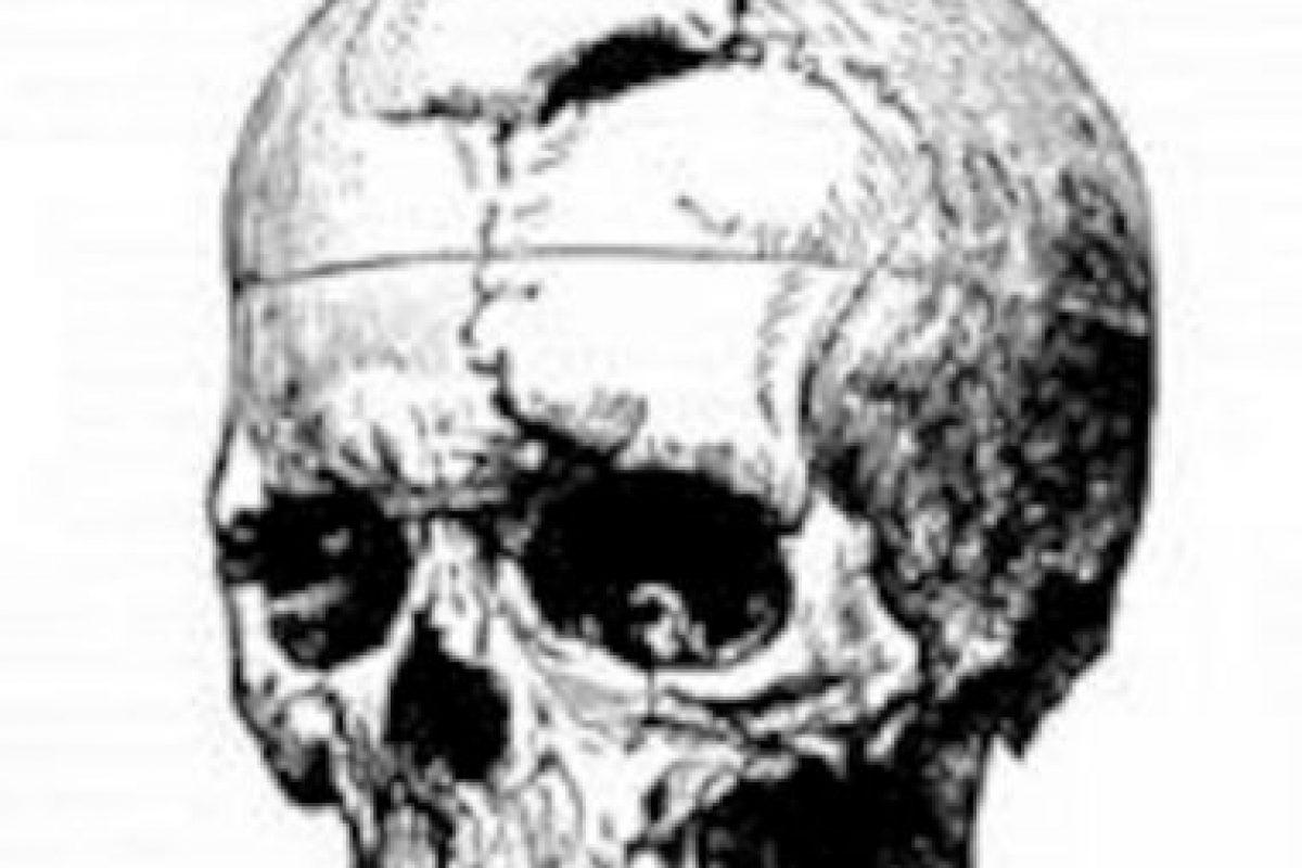 Psicólogos estudiaron el comportamiento de Gage y descubrieron que nuestra personalidad es controlada por nuestro cerebro. Foto:Wikipedia. Imagen Por: