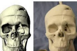Mucha gente sobrevive con objetos incrustados en el cuerpo. Estos son algunos ejemplos: Foto:Wikipedia. Imagen Por: