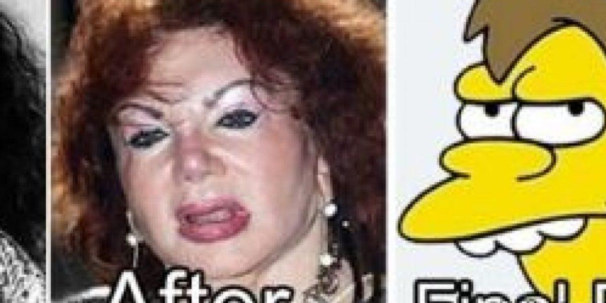 Fotos: Así se burlan en la red de celebridades con exceso de cirugías