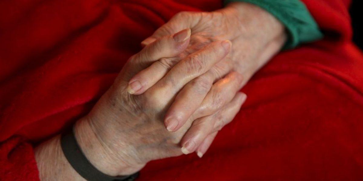 Un gen provoca que las mujeres sean más propensas a padecer Alzheimer