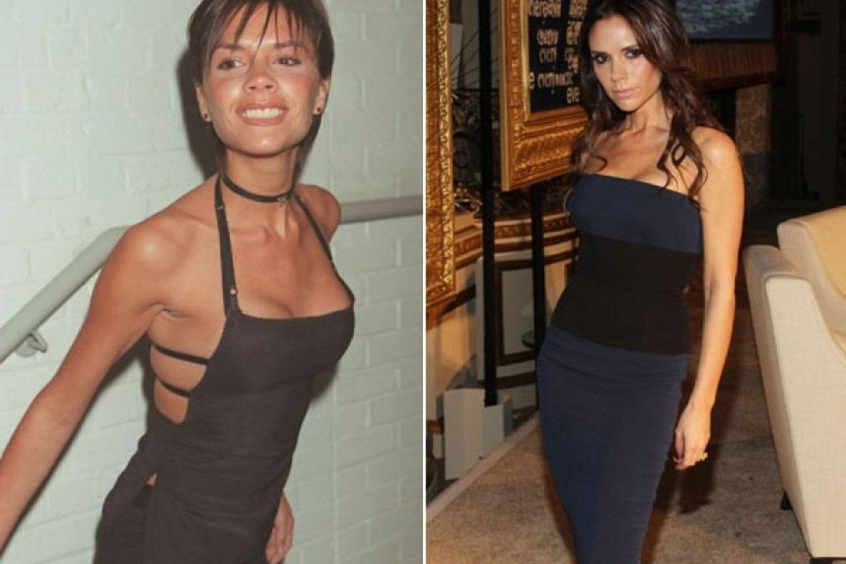 A ella le criticaban su anorexia. Foto: Getty. Imagen Por: